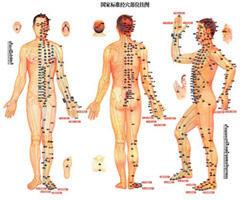 media/images/acupuncture-02.jpg